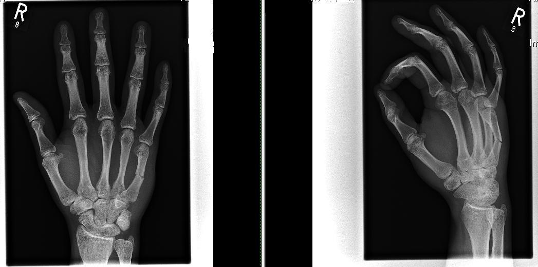 Перелом пальца на руке - Здоровье